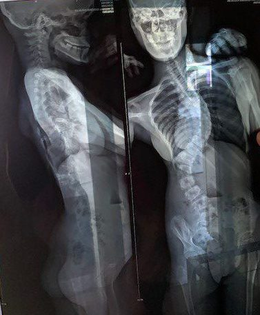 xray of Nicholes spine